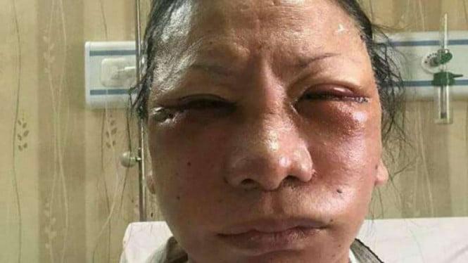 Ratna Sarumpaet dipukul, diculik, dianiaya